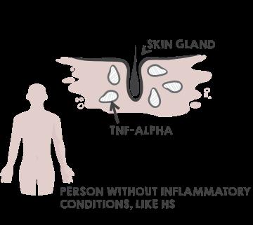 What is Hidradenitis Suppurativa (or Acne Inversa)