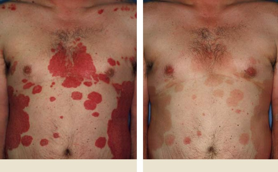 Pictures of Psoriasis on Chest