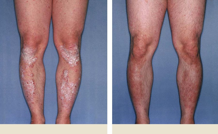 Pictures of Psoriasis on Knees