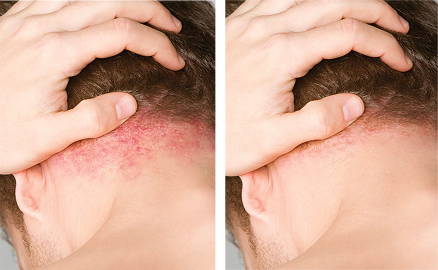 Image of plaque psoriasis before and after